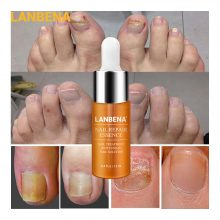 LANBENA Nail Repair Essence-Serum Fungal Nail Treatment Remove Onychomycosis Nose Tooth Nutrient Lightening Hand and Foot Care