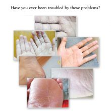 100g Aichun Heel Chapped Peeling Foot Hand Repair Anti Dry Cracked Ointment Cream Skin Repair Moisturizing Foot Cream